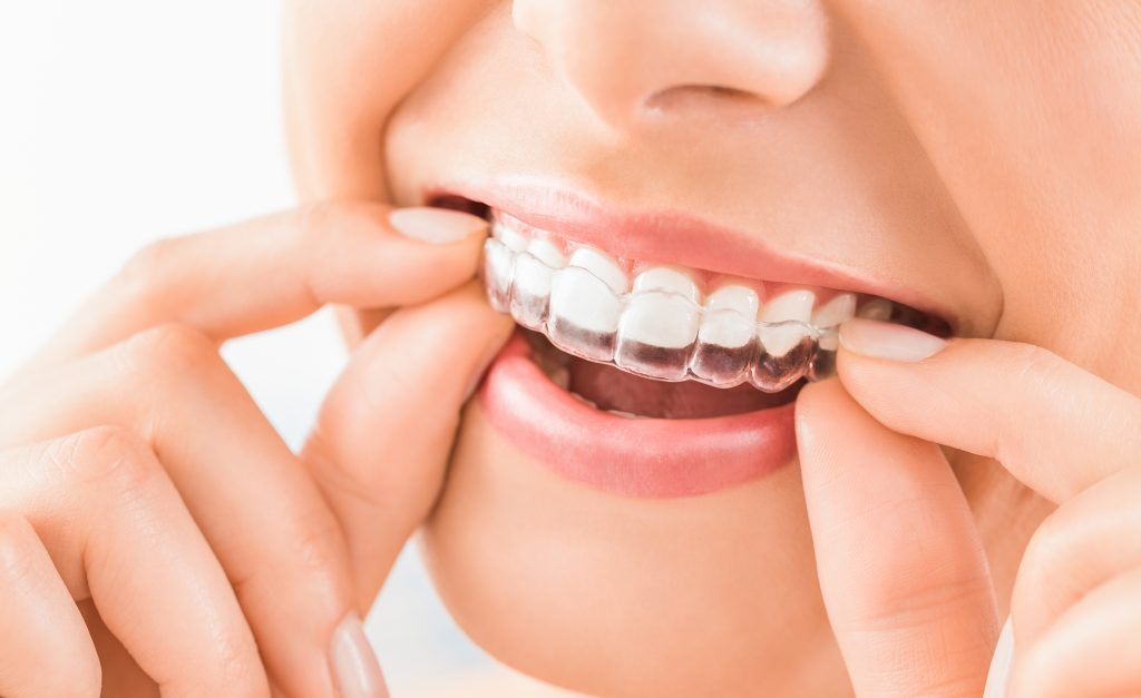 Our Easy Invisalign® Process